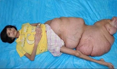 world's largest leg tumor  (2)